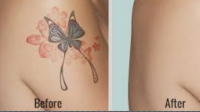 Understanding Tattoo Laser Treatment